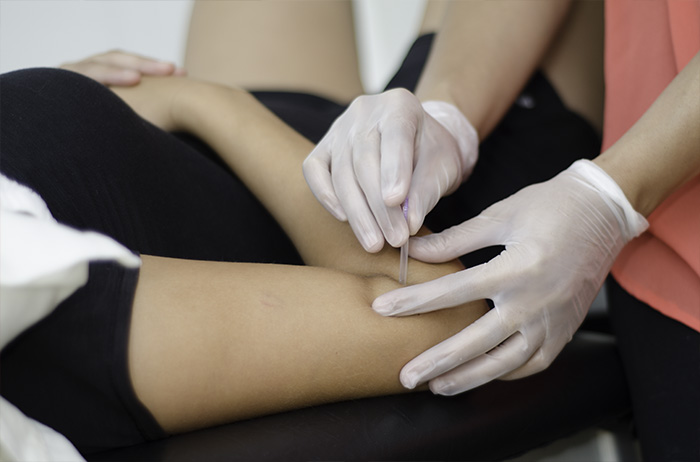Physiotherapy - IMS - Intramuscular stimulation