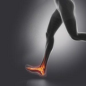 Physiotherapy in edmonton for foot pain: plantar fasciitis, top of the foot pain, bunion stress fracture